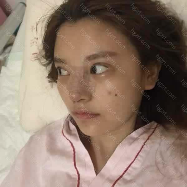 徐医生也说我一个年轻女孩子在胸下留个疤痕不太适合