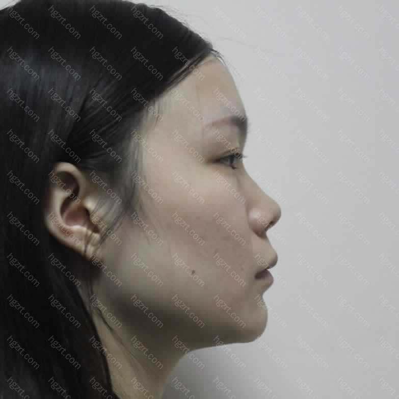 鼻子的基础真的是比较差的;鼻子不好看的时候颜值很低了