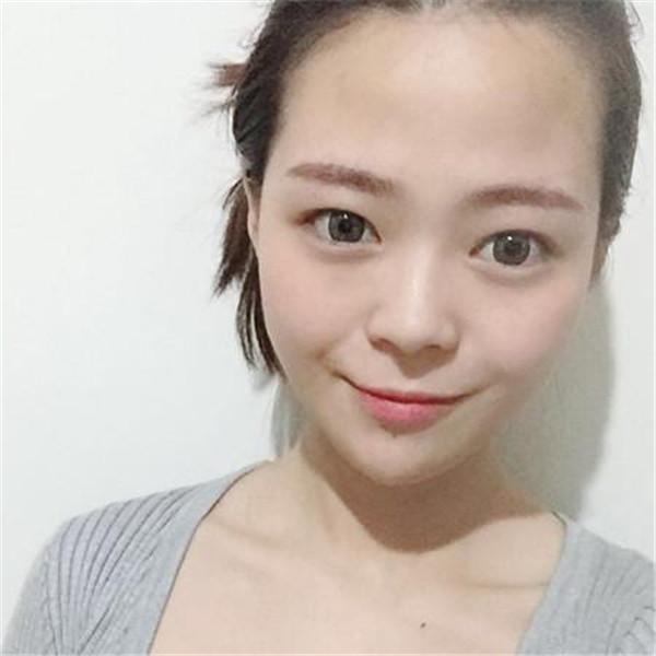 想知道广州做的肋软骨隆鼻多久恢复吗,我的亲身经历快来看