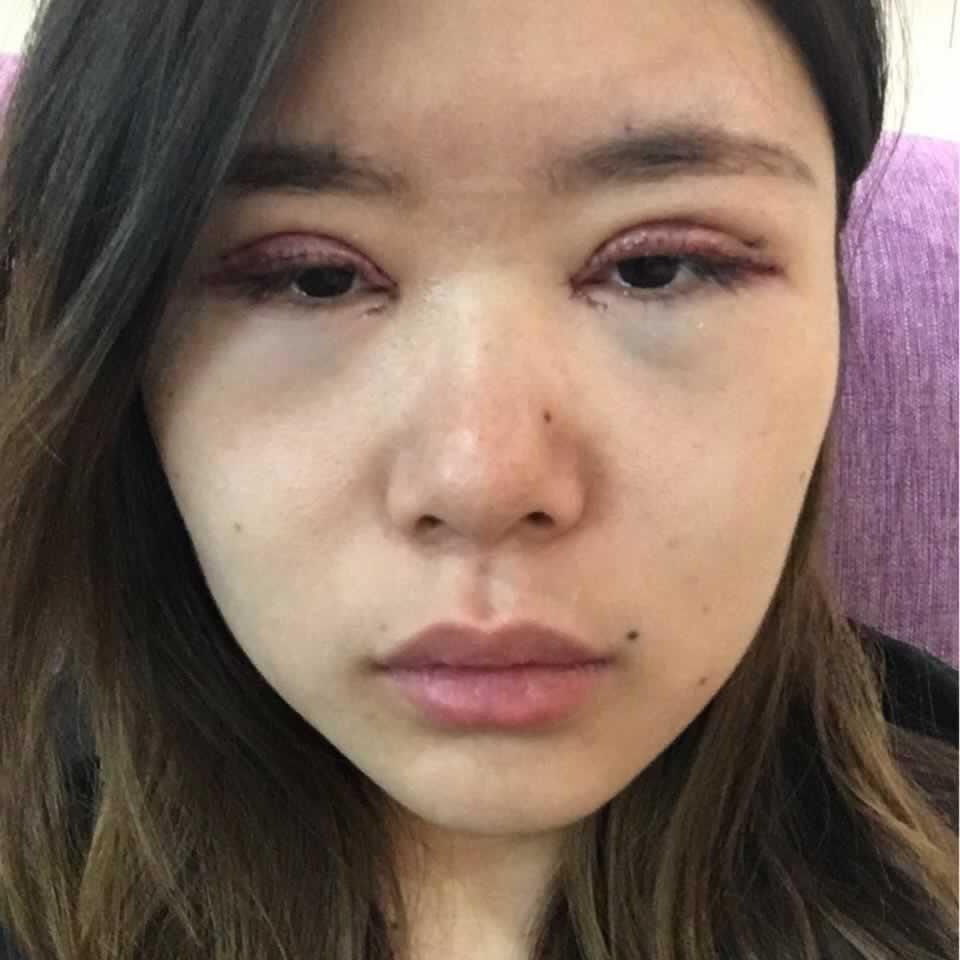 北京美莱整形医院电话我是知道滴,但我不会告诉你哈哈,晒照片咯,做滴双眼皮开眼角。