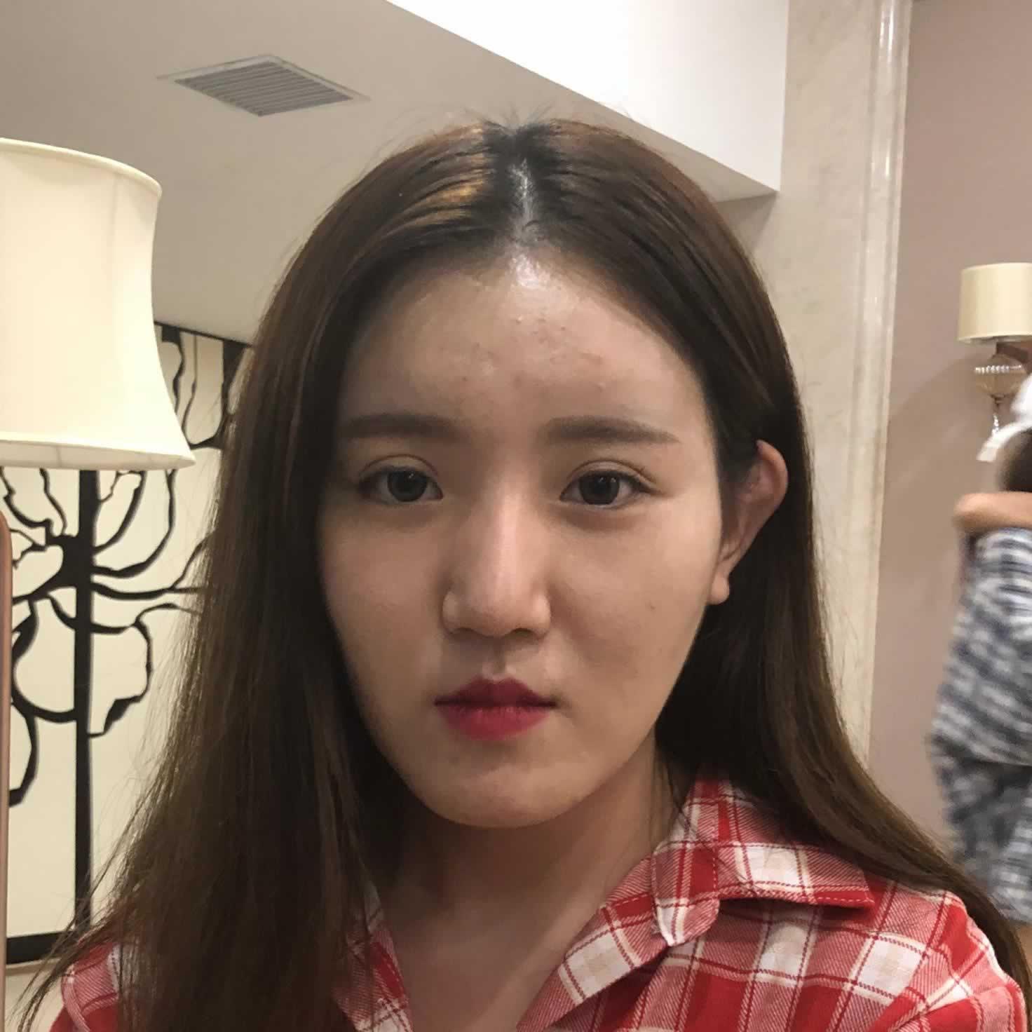 都问我北京玲珑梵宫肋软骨隆鼻+自体脂肪填充有什么后遗症吗 那就是变得太美腻了