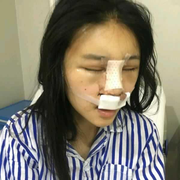很多人都担心膨体隆鼻感染 可我在石家庄冀美做隆鼻后鼻子不但没有感染且更加自然逼真