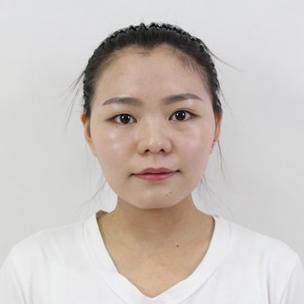 小伙伴问我在北京医院做的6mm全切双眼皮效果好看吗,我觉得术后3个月恢复很自然。