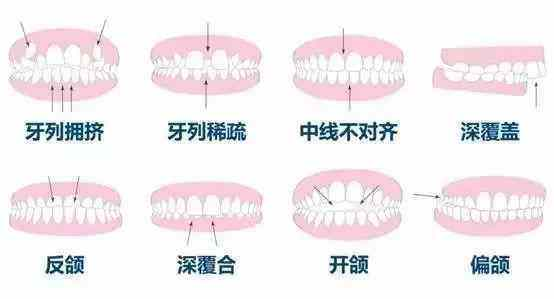 初戴隐形牙套必知的6件事,不知道牙就毁了!