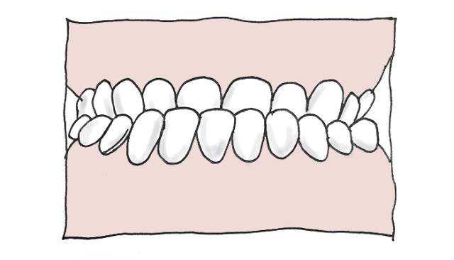 牙齿矫正可以改变嘴凸么?感觉牙有点凸出,有两个牙不是说很整齐,想做牙齿矫正能否改变嘴凸?