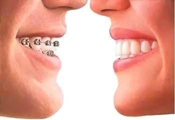 关于牙齿矫正,你想知道的都在这儿!