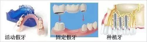 种植牙 VS 镶牙 ,哪个更胜一筹?
