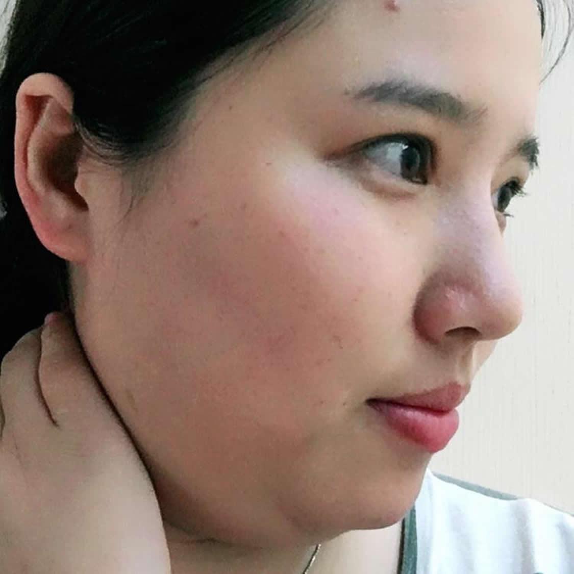 想知道在北京医院做的面部吸脂后要注意什么 那就看看我面部吸脂术后恢复过程吧