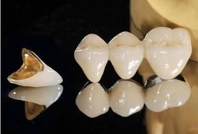 有人知道烤瓷牙分哪几种及它们的优缺点吗?