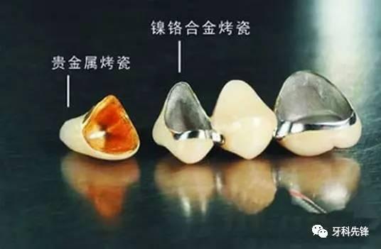 11种烤瓷牙的种类你必须了解