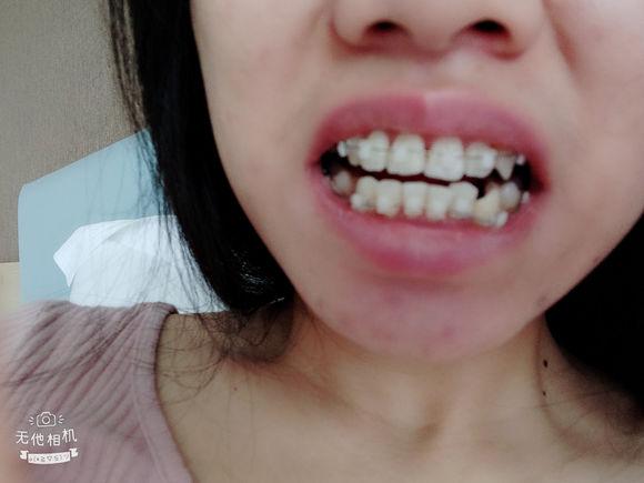 戴牙套啦希望早日结束龅牙