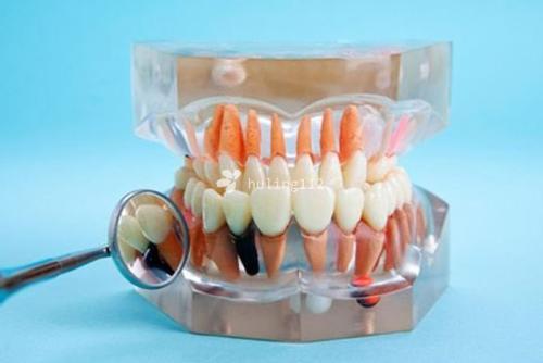 教你如何选择合适的种植牙