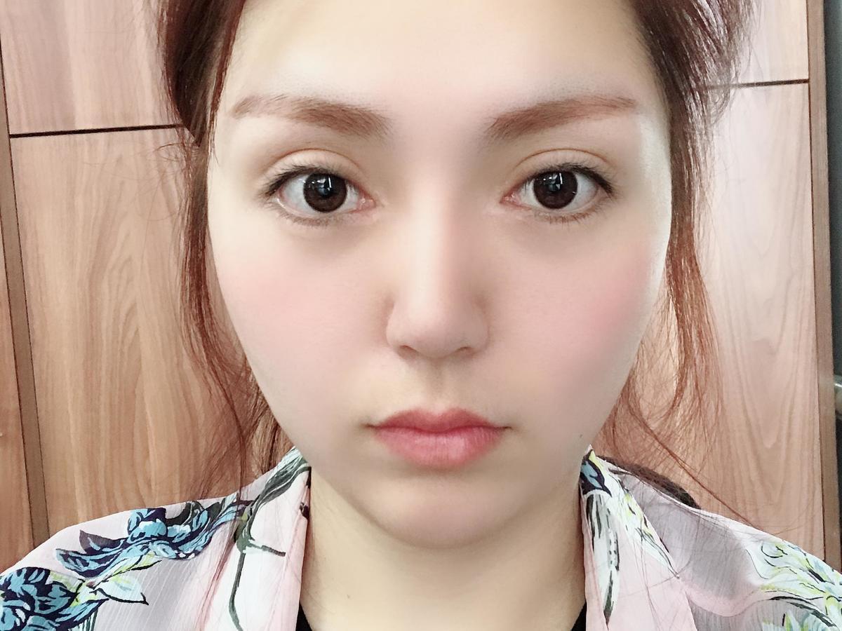 Vline手术被禁止了?用案例说话:在杭州市格莱美做的韩式Vline术后效果反馈