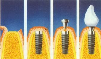 整个种植牙完成时间需要多久?