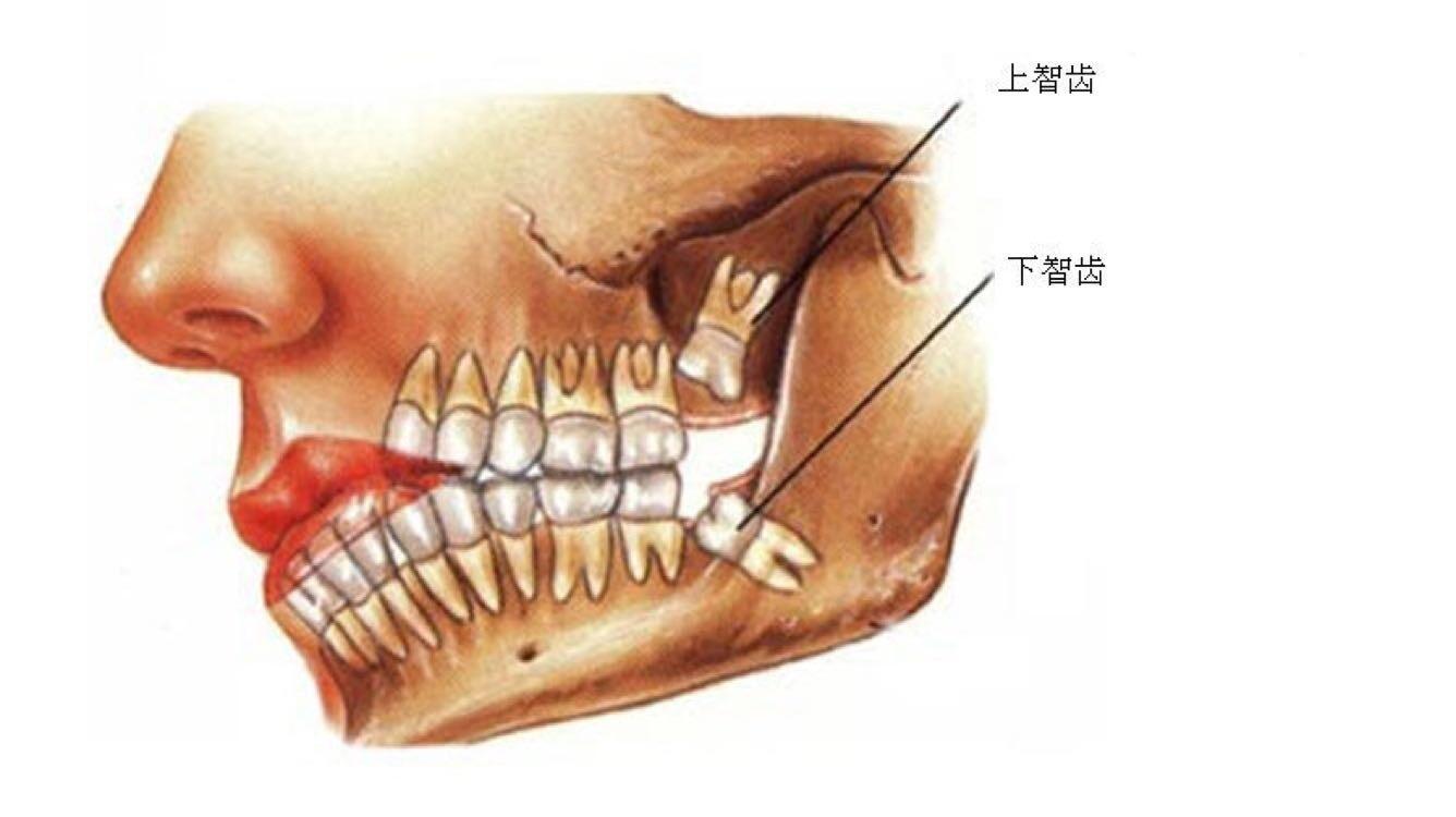 牙齿矫正过程中,你的智齿只会帮倒忙?