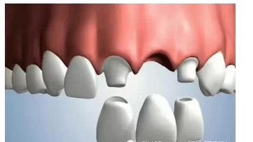 烤瓷牙做完之后怎么护理?