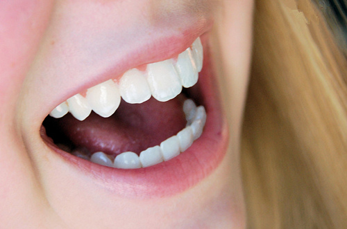 什么情况需要摘除烤瓷牙?怎么摘烤瓷牙?