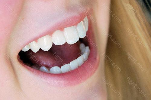 烤瓷牙可以取下来。    烤瓷牙在制作和使用的过程中,偶尔会存在一些问题,有些小问题不必取下来,但有部分影响到牙龈或牙齿健康的时候,是需要将它拆除的。    烤瓷牙的拆除一般是破坏性拆除,即用钻将烤瓷牙冠磨开并取下,一般不会损伤旁边的牙齿。