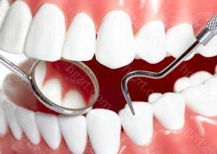 哪些情况烤瓷牙可以取下来牙龈发黑可以取下来    这是采用非贵金属(镍铬合金、钴铬合金、纯钛)制作烤瓷牙常见的并发症,非贵金属在口腔内氧化成灰色氧化物,沉淀在牙龈边缘,引起牙龈发黑。这样的烤瓷牙时间久了会引起牙龈炎,逐渐发展成牙周炎,造成牙齿松动、脱落,必须取下来。