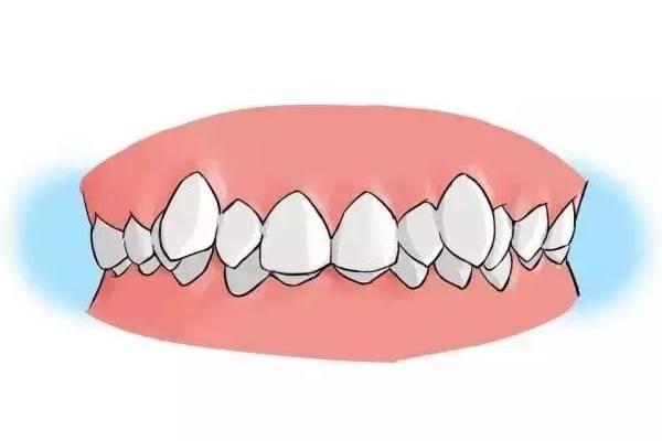 脸部不对称?牙齿前凸?牙齿矫正能够搞定吗?