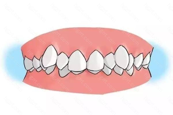 牙齿矫正仅仅是让牙齿变得整齐漂亮吗?还与你的口腔健康息息相关!