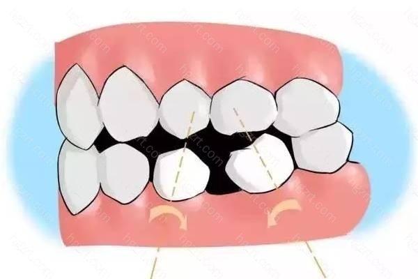 6、牙齿倾斜