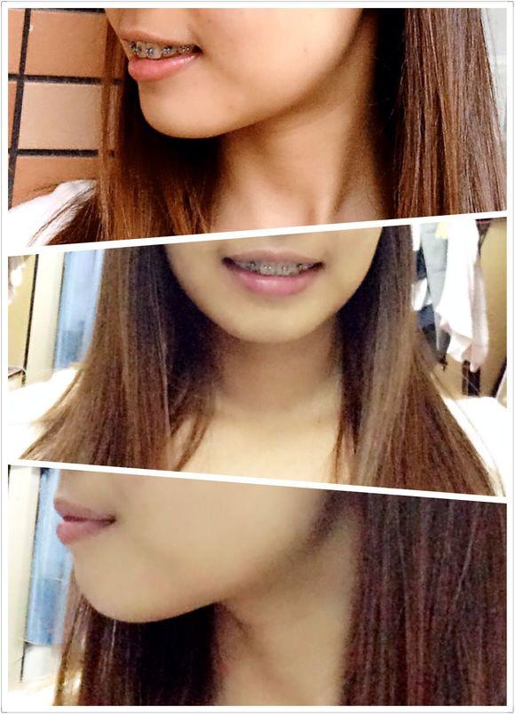 骨性龅牙的痛