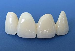 3D烤瓷牙是什么?