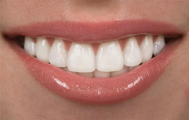烤瓷牙治疗过程中的牙科陷阱