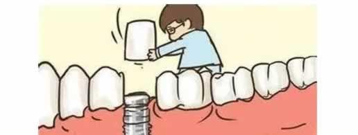 原来种植牙这么简单?用图告诉你种植的过程