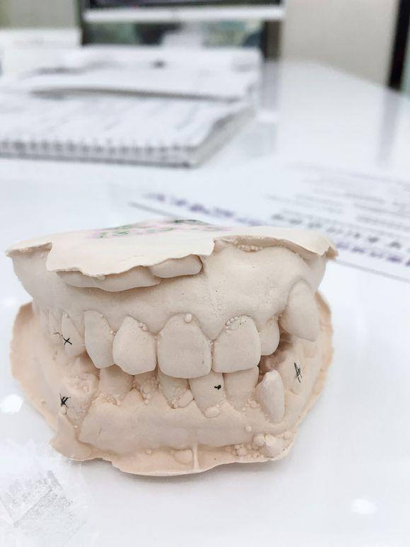 牙first天,没有想象中那么痛,但是拔牙后流血一直有点