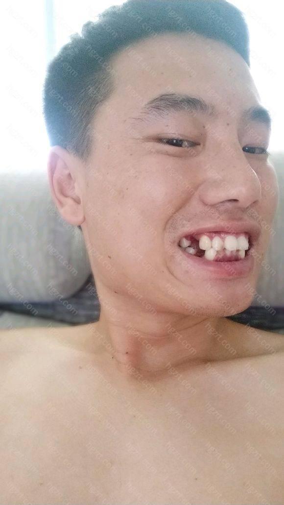 刚开始戴牙套那几天牙齿酸痛