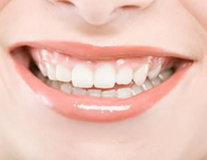 做烤瓷牙磨牙疼吗?