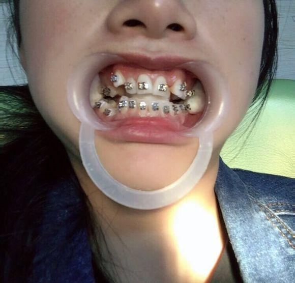 戴牙套两个月半了,还是挺明显的