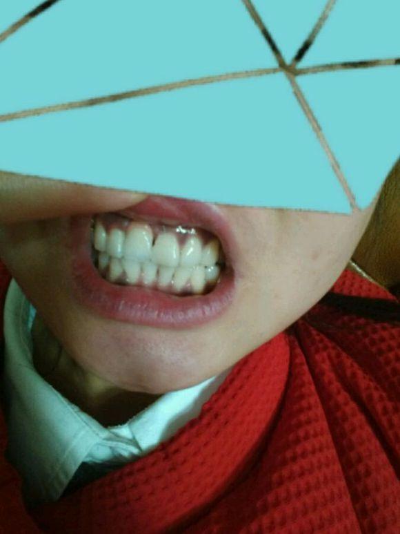 经历一年,种植牙,终于完成