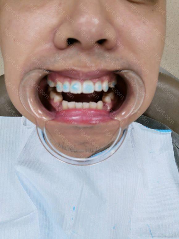 今天去把了右侧4*2正畸牙