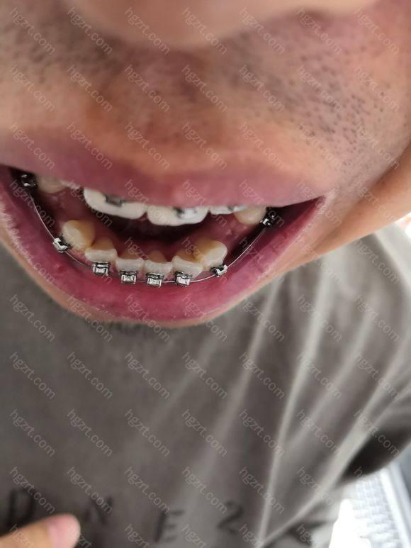 上牙齿痒痒的