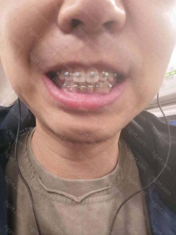 今天带上牙托槽