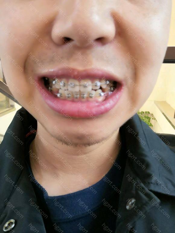 门牙出现了缝隙