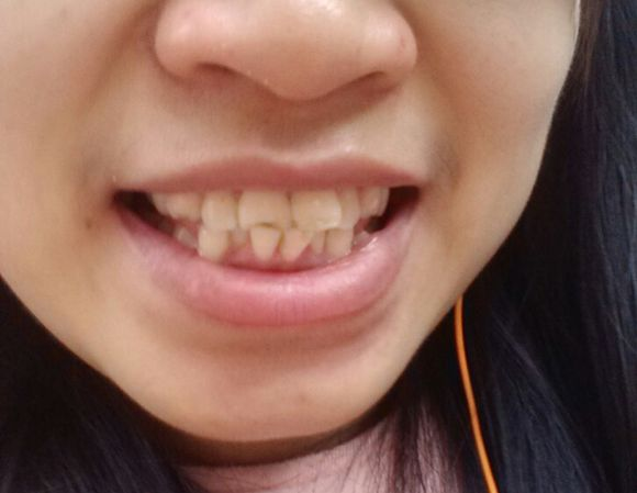 大龄女矫正史开始了!为了记录自己牙齿的历史