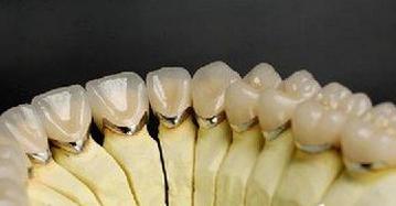 烤瓷牙与全瓷牙,应怎样选?