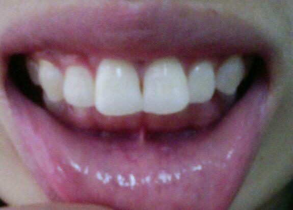 有没有和我牙齿差不多的矫正好了的啊?!有图有真相。。