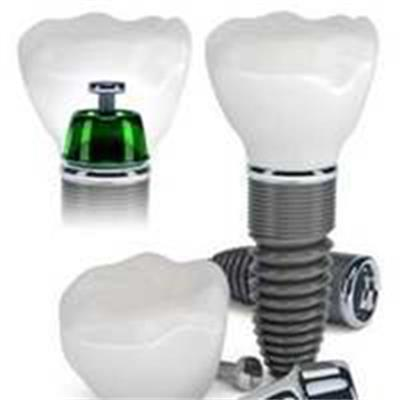¥6588进口韩国登腾种植牙无锡贝壳口腔门诊部