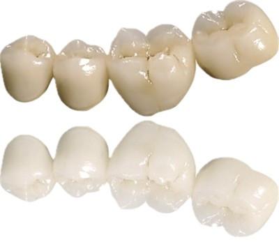 劣质烤瓷牙的危害有多大?