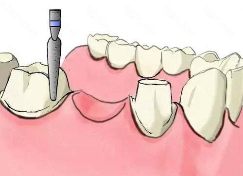 但是门牙影响美观的地方是可以制作不受力的活动义齿.记住