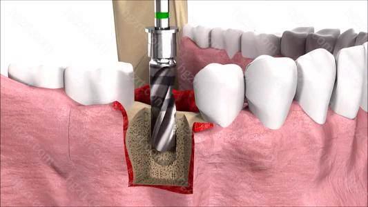 牙齿拔除后多长时间可进行种植牙修复?拔牙后可以立刻种植牙吗?