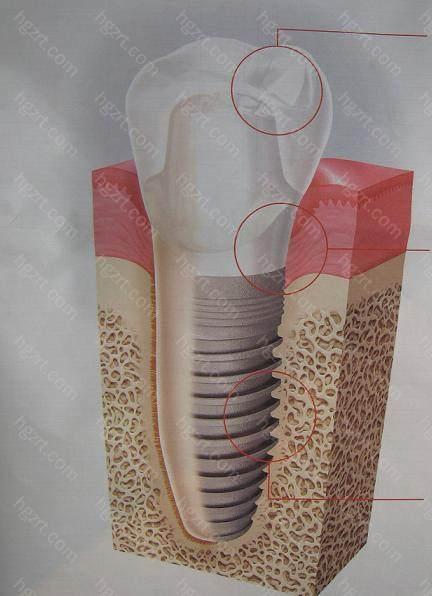 但种植牙和真牙一样易受到口腔内细菌等的影响
