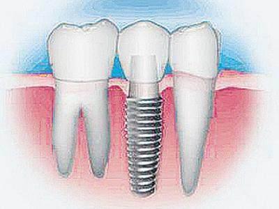 对于传统方法无法进行固定修复的多个牙连续缺失、后牙游离缺失等问题也可进行固定修复