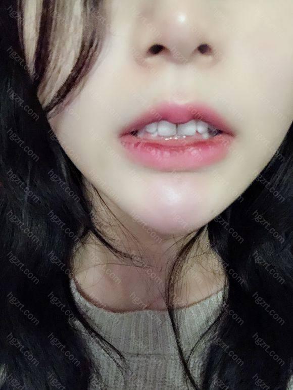 我居然才知道我的牙有问题