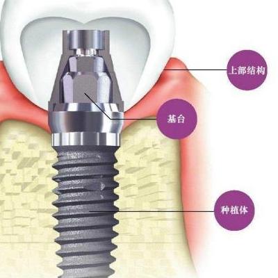¥8488进口以色列MIS种植牙无锡贝壳口腔门诊部